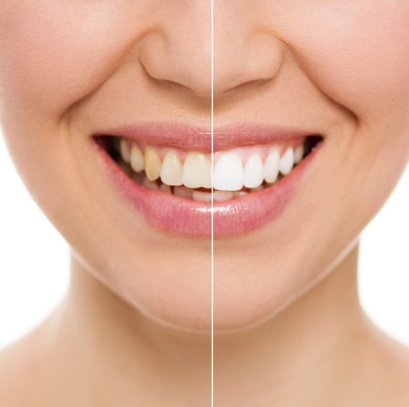 Laser teeth whitening service in egbeda Lagos by estreme therapy